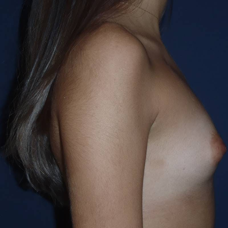 Breast Augmentation Gallery - Patient 4455302 - Image 3