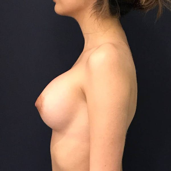 Breast Augmentation Gallery - Patient 4455302 - Image 6