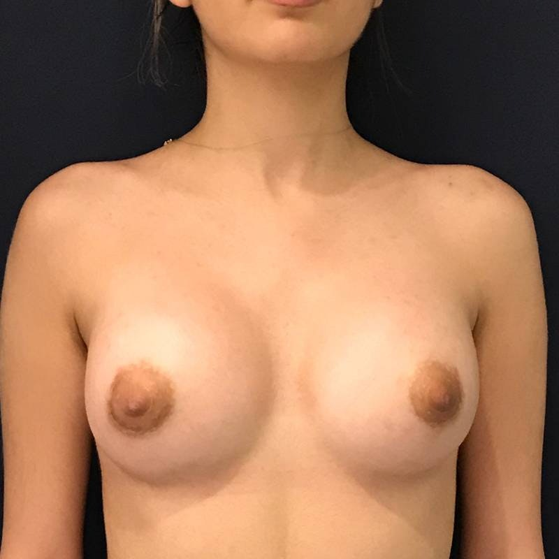 Breast Augmentation Gallery - Patient 4455302 - Image 2
