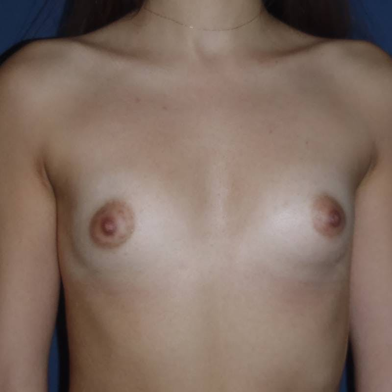 Breast Augmentation Gallery - Patient 4455302 - Image 1