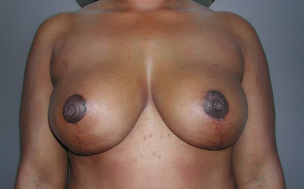 Breast Reduction Gallery - Patient 4488193 - Image 2