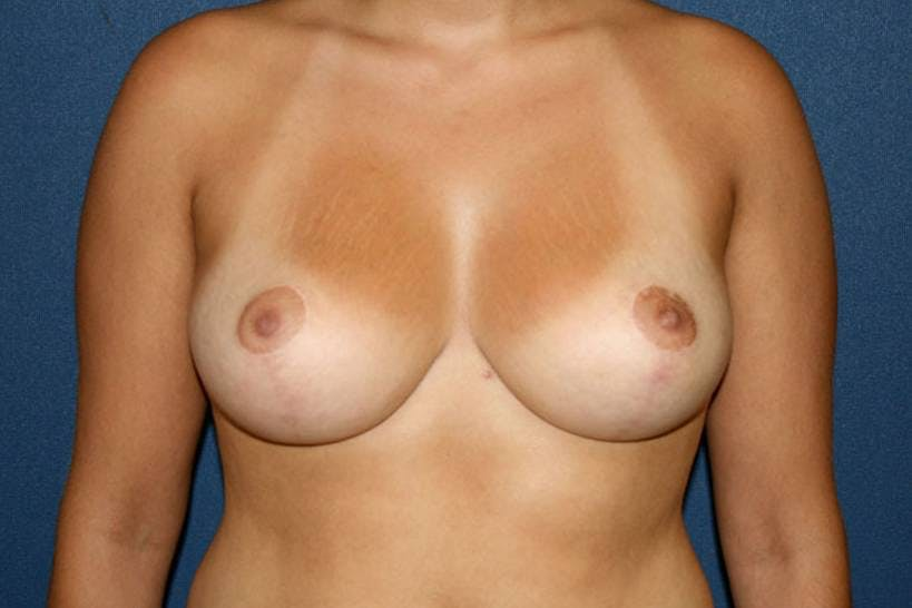 Breast Reduction Gallery - Patient 4488194 - Image 2
