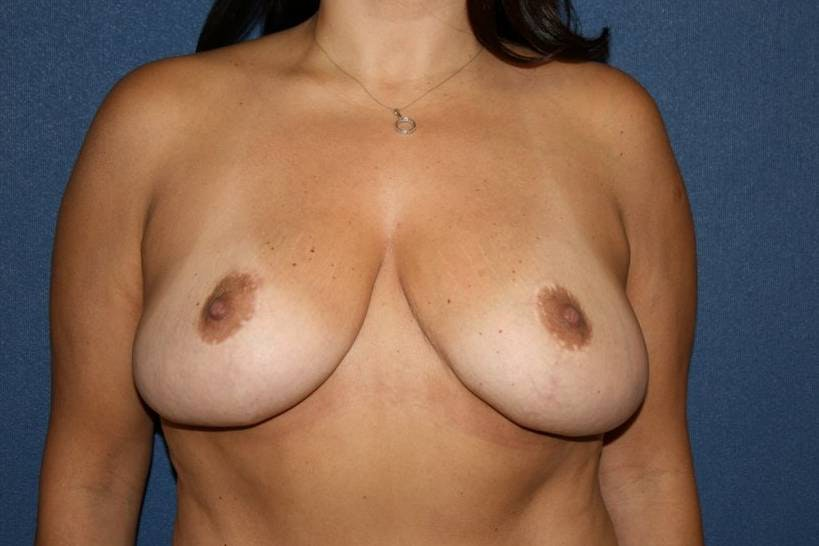 Breast Reduction Gallery - Patient 4488194 - Image 1