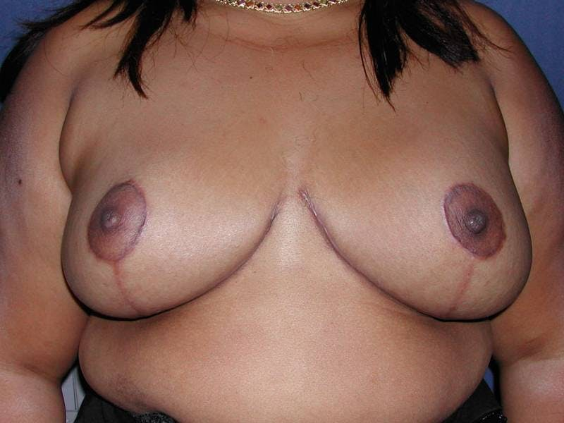 Breast Reduction Gallery - Patient 4488196 - Image 2