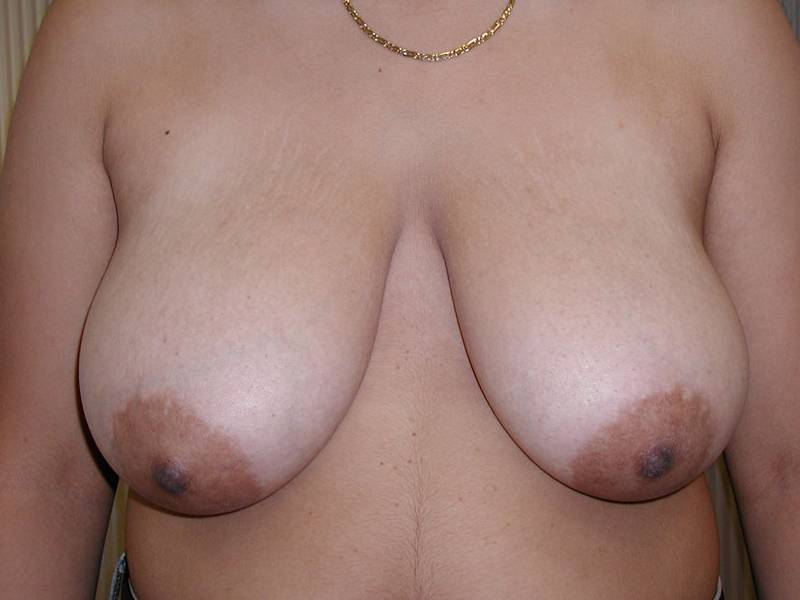 Breast Reduction Gallery - Patient 4488196 - Image 3