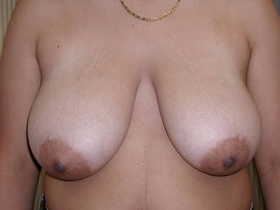 Breast Reduction Gallery - Patient 4488196 - Image 1