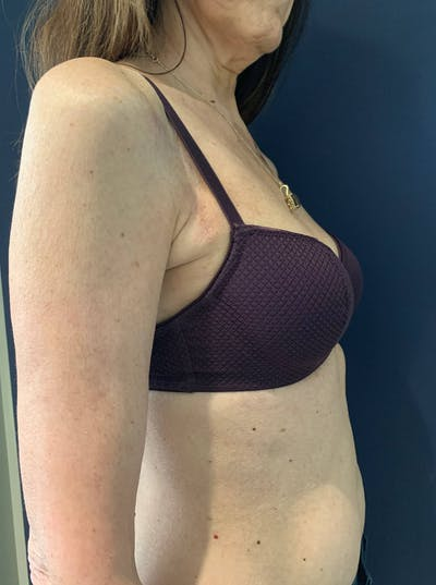 Breast Reconstruction Gallery - Patient 51843252 - Image 2