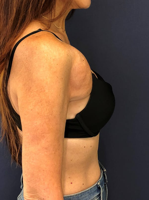 Breast Reconstruction Gallery - Patient 51843252 - Image 1