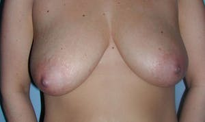 Breast Lift in NYC Before and After