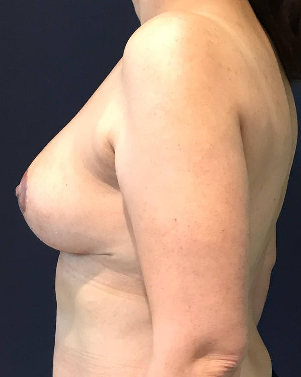 Breast Revision Gallery - Patient 4488538 - Image 4