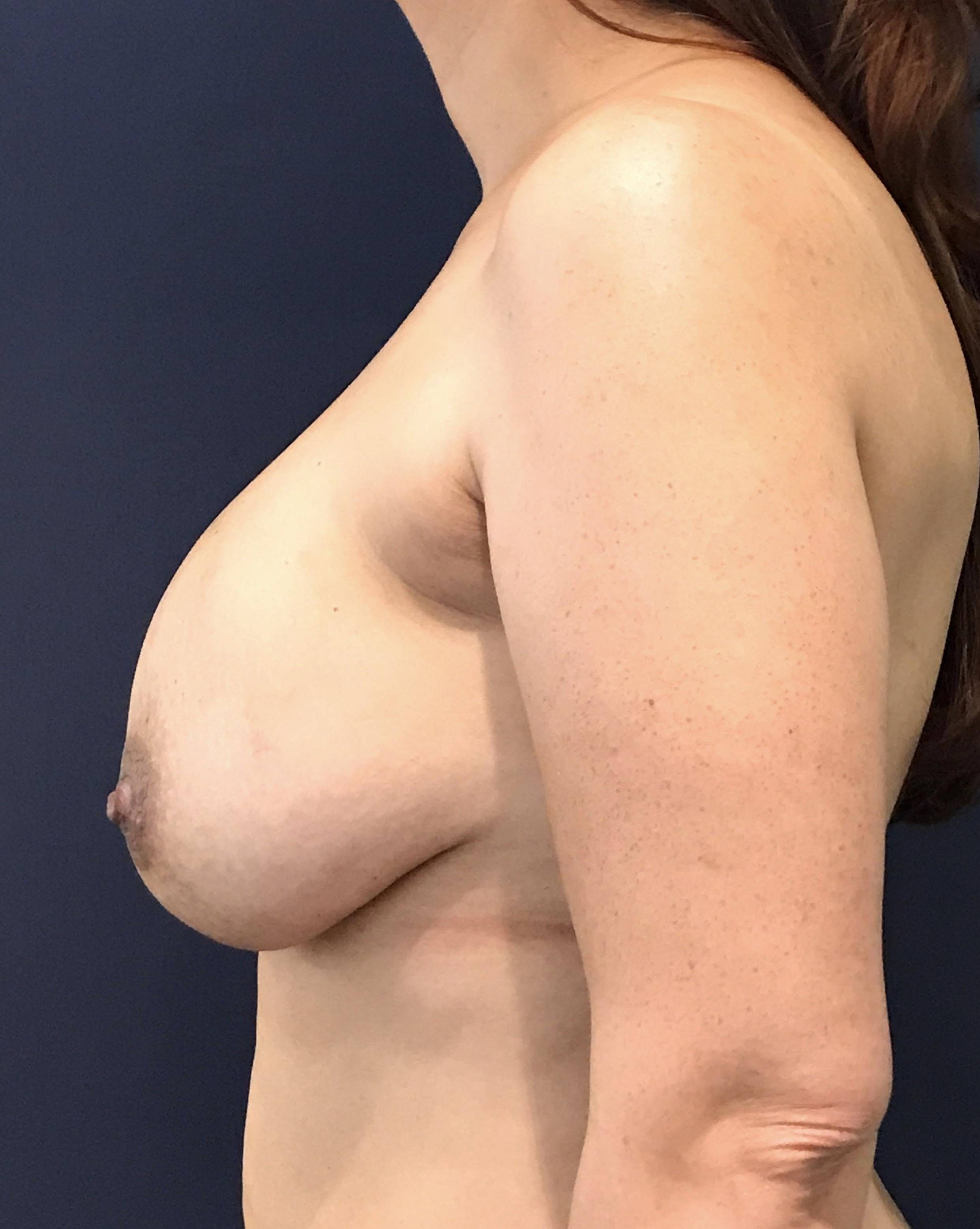 Breast Revision Gallery - Patient 4488538 - Image 3