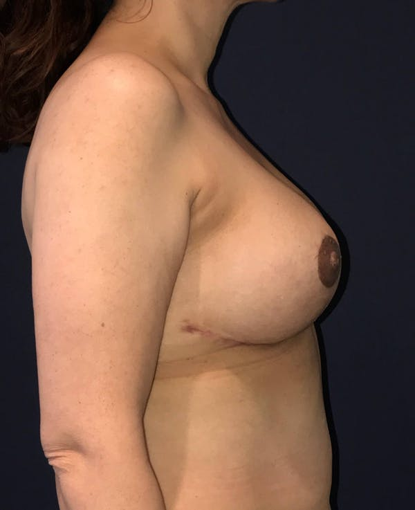 Breast Revision Gallery - Patient 4488538 - Image 6