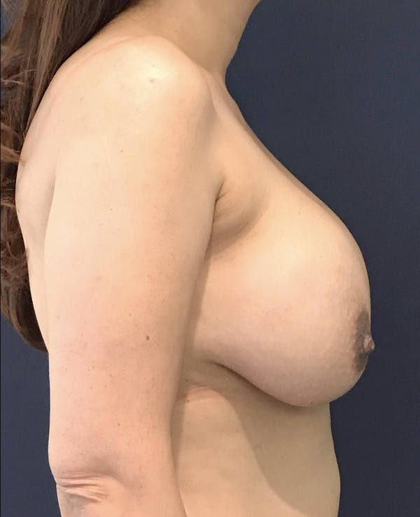 Breast Revision Gallery - Patient 4488538 - Image 5