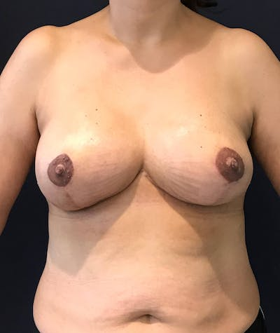 Breast Revision Gallery - Patient 4488538 - Image 2