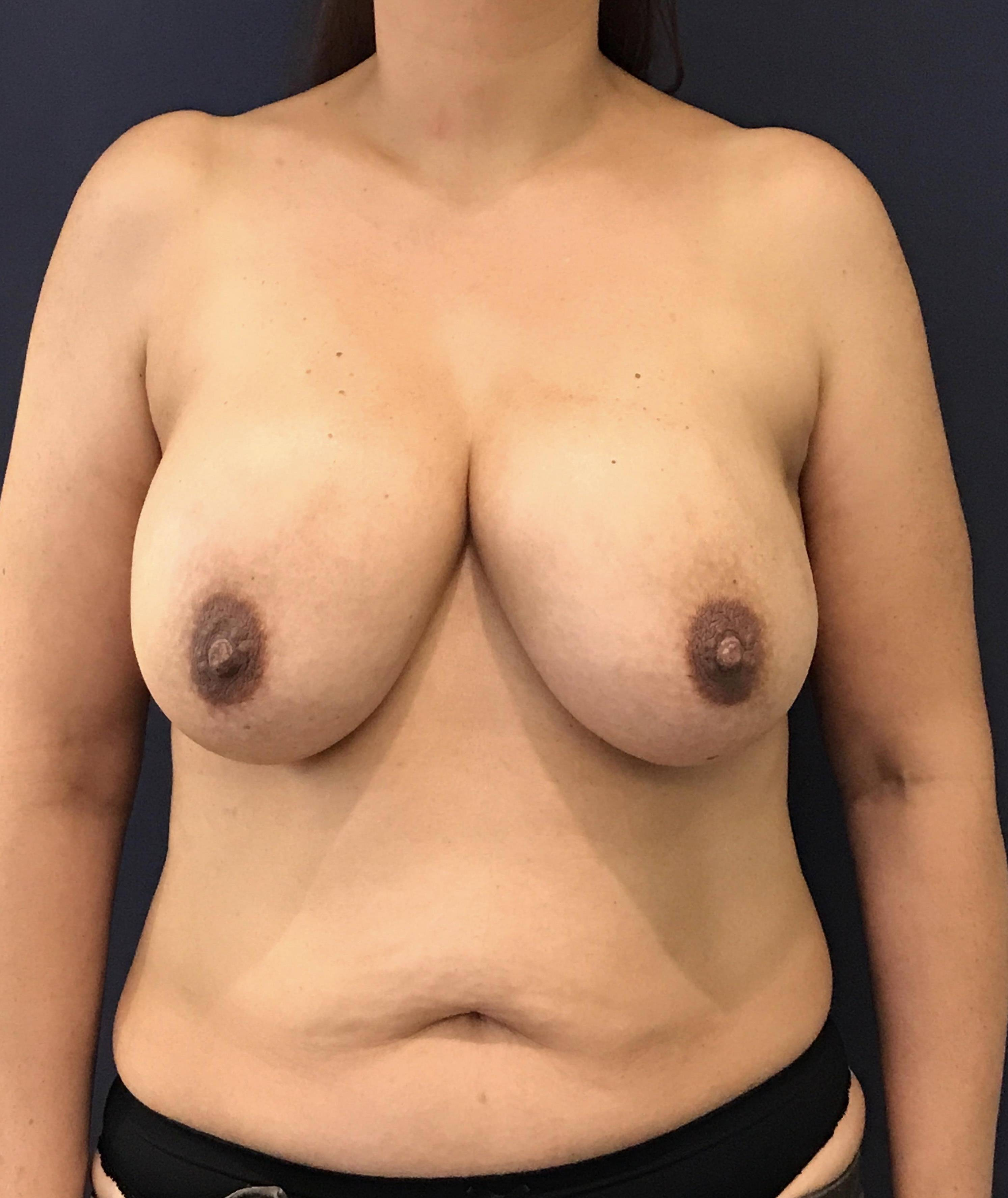 Breast Revision Gallery - Patient 4488538 - Image 1