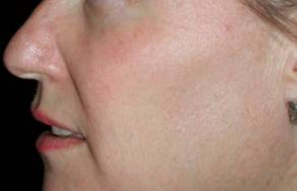 Skin Cancer Treatment Gallery - Patient 4488552 - Image 2