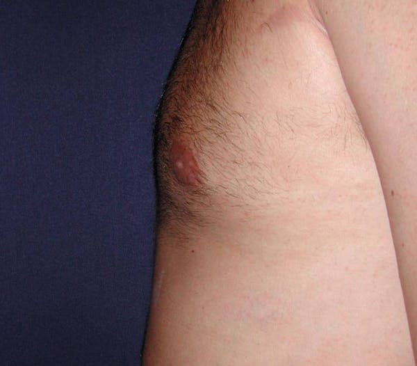 Gynecomastia (Male Breast Reduction) Gallery - Patient 4454711 - Image 4