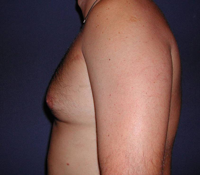 Gynecomastia (Male Breast Reduction) Gallery - Patient 4454711 - Image 3