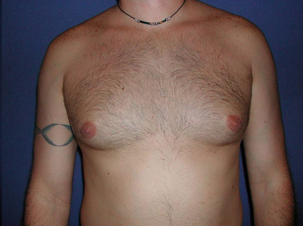 Gynecomastia (Male Breast Reduction) Gallery - Patient 4454711 - Image 1