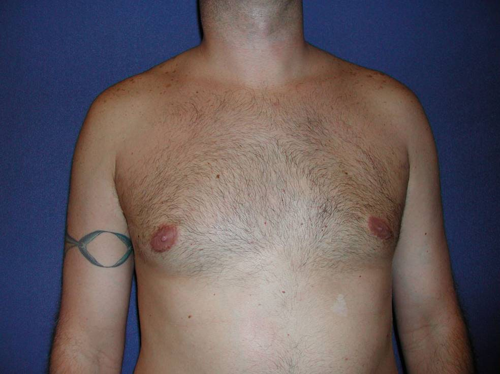 Gynecomastia (Male Breast Reduction) Gallery - Patient 4454711 - Image 2