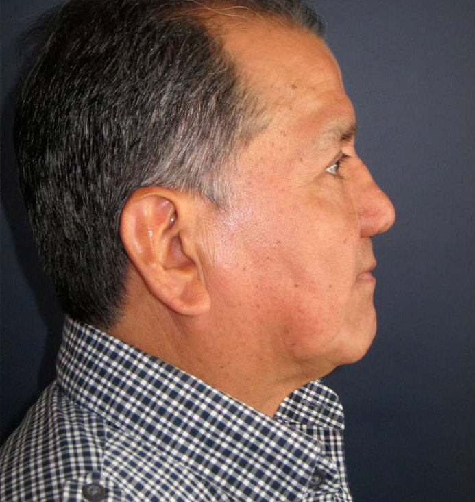 Blepharoplasty (Eyelid Surgery) Gallery - Patient 4447960 - Image 4