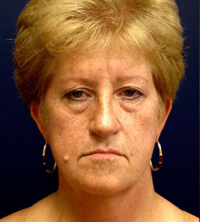 Blepharoplasty (Eyelid Surgery) Gallery - Patient 4448012 - Image 1