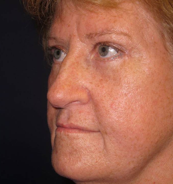 Blepharoplasty (Eyelid Surgery) Gallery - Patient 4448012 - Image 4