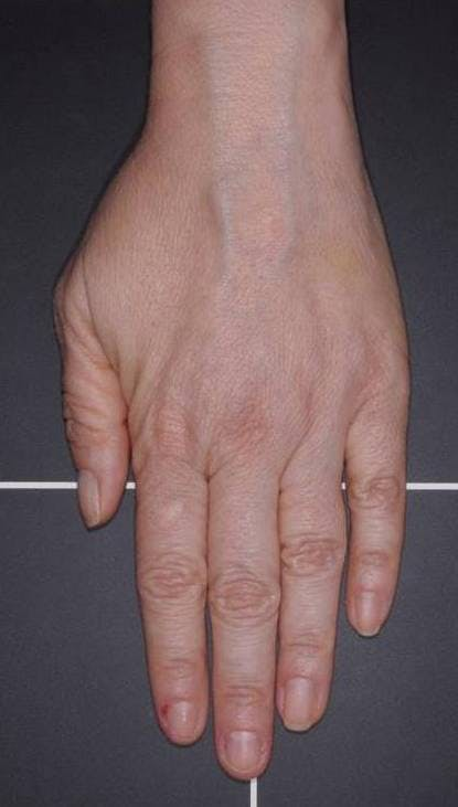 Fat Grafting for Hands Gallery - Patient 4513918 - Image 2