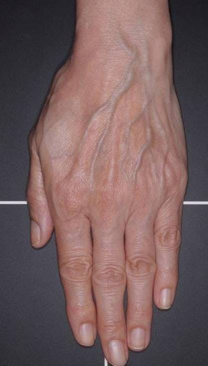 Fat Grafting for Hands Gallery - Patient 4513918 - Image 1