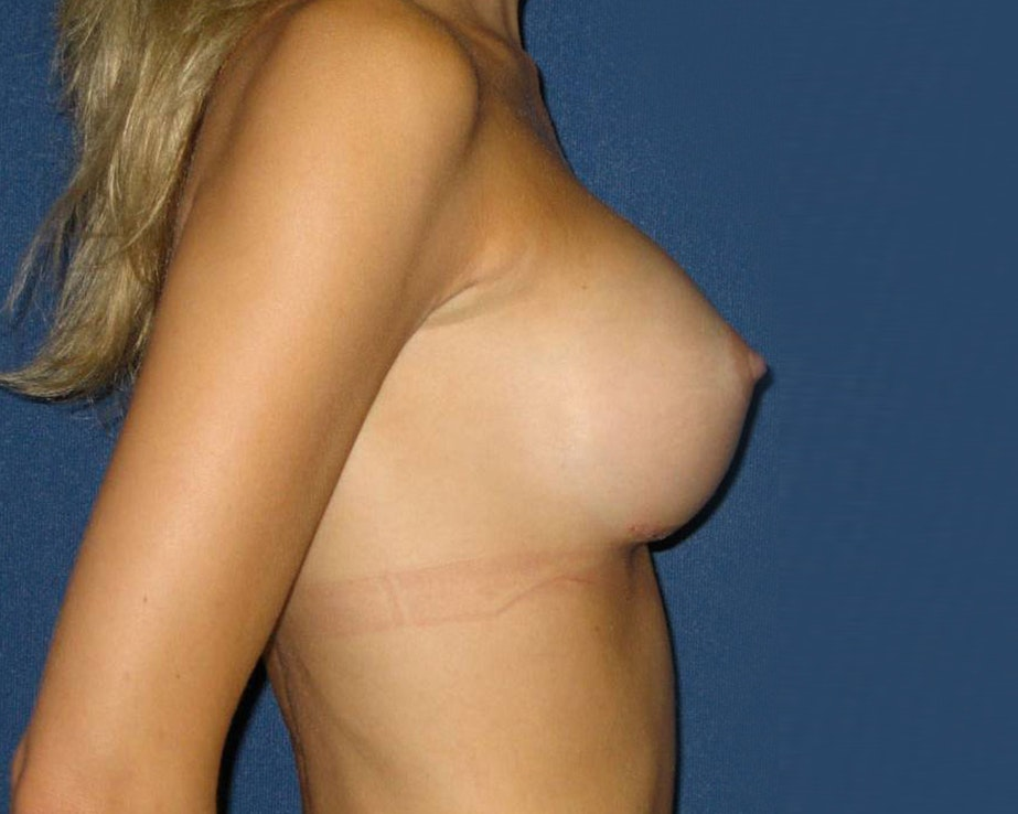Breast Augmentation Gallery - Patient 4454965 - Image 4