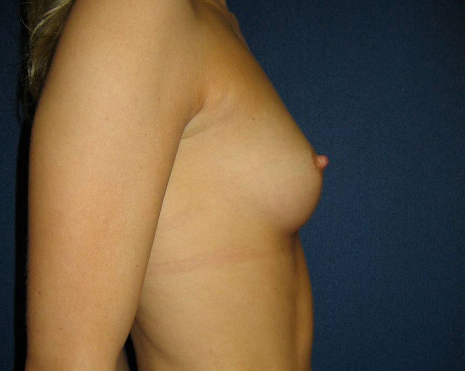 Breast Augmentation Gallery - Patient 4454965 - Image 3