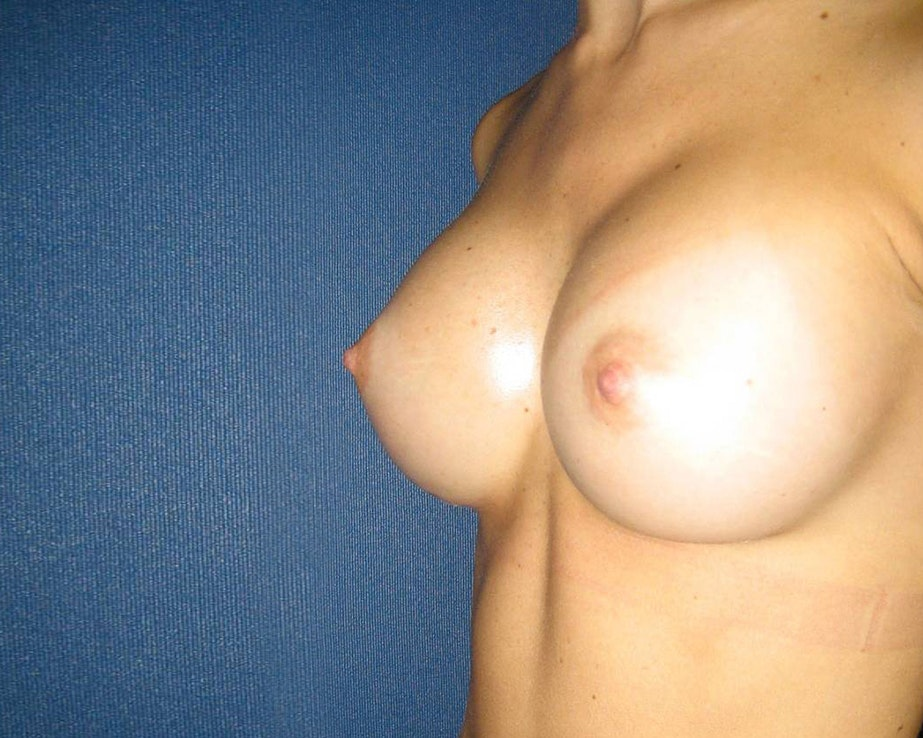 Breast Augmentation Gallery - Patient 4454965 - Image 6