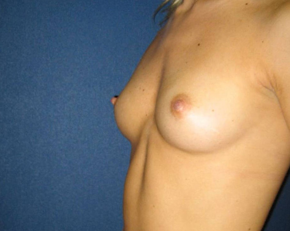 Breast Augmentation Gallery - Patient 4454965 - Image 5