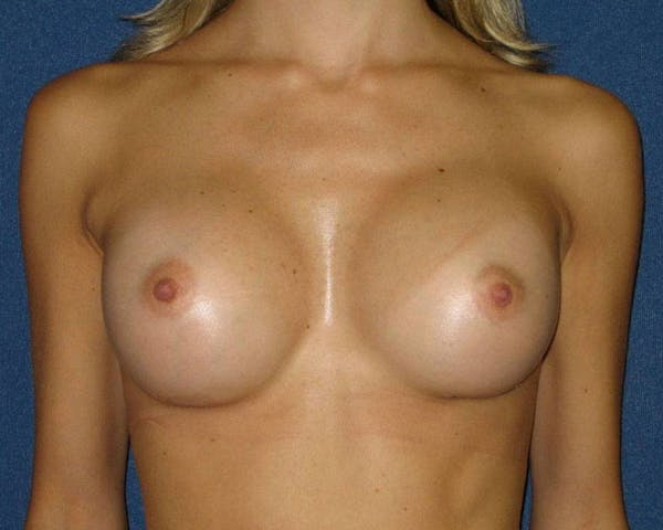 Breast Augmentation Gallery - Patient 4454965 - Image 2