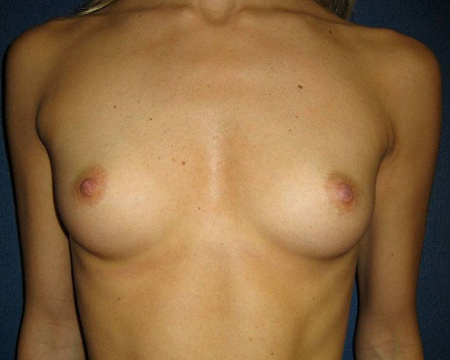 Breast Augmentation Gallery - Patient 4454965 - Image 1