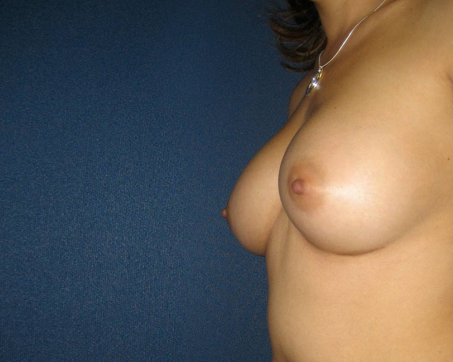 Breast Augmentation Gallery - Patient 4455014 - Image 4