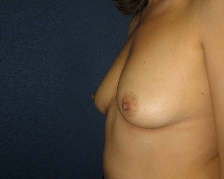 Breast Augmentation Gallery - Patient 4455014 - Image 3