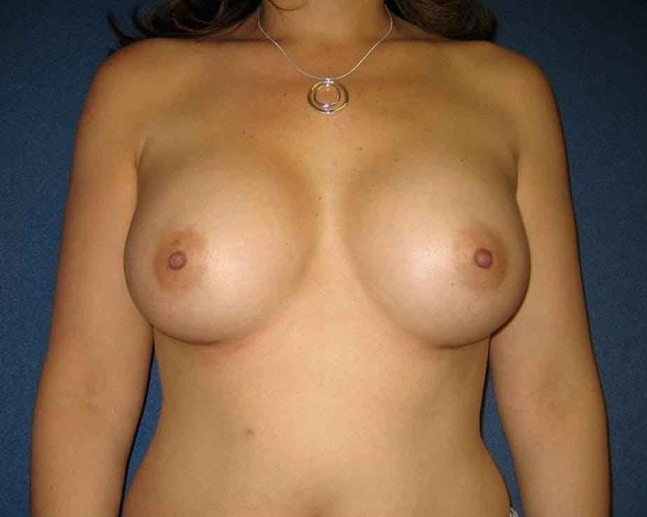 Breast Augmentation Gallery - Patient 4455014 - Image 2