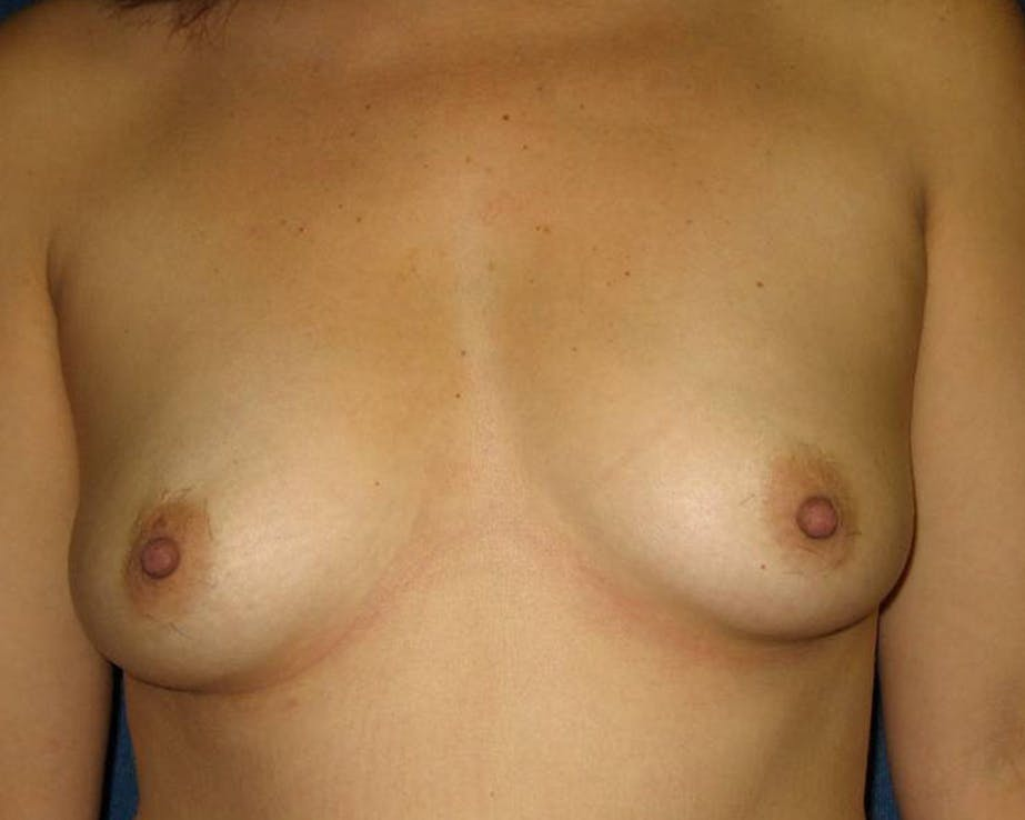 Breast Augmentation Gallery - Patient 4455014 - Image 1