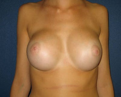 Breast Augmentation Gallery - Patient 4455015 - Image 2