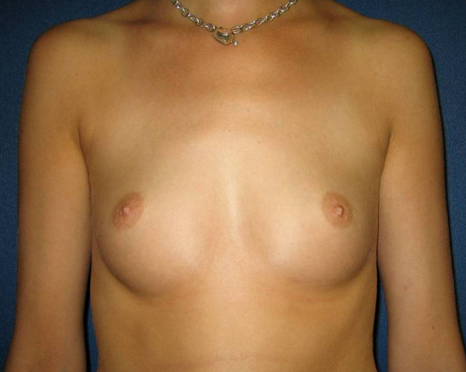 Breast Augmentation Gallery - Patient 4455015 - Image 3