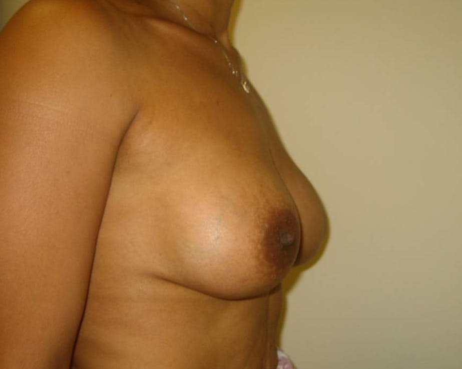Breast Augmentation Gallery - Patient 4455138 - Image 4