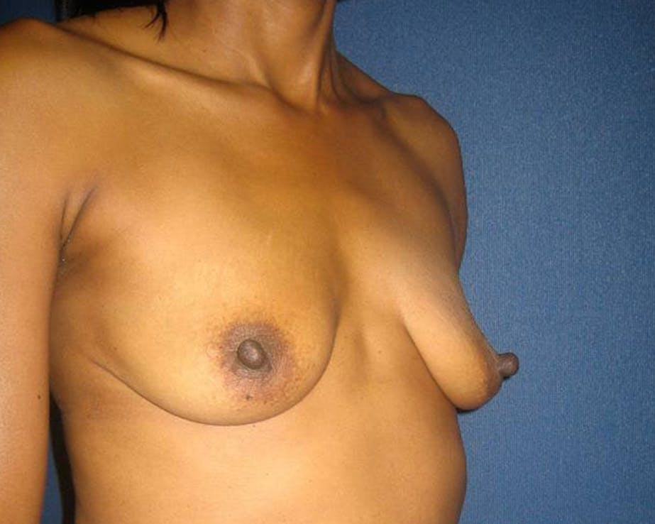 Breast Augmentation Gallery - Patient 4455138 - Image 3