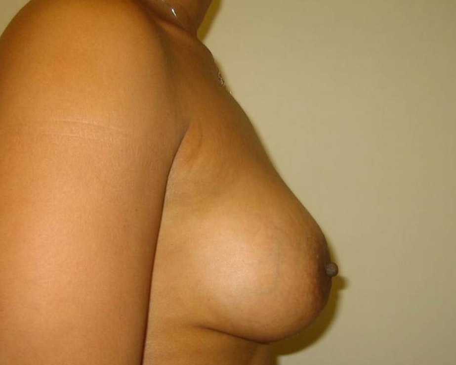 Breast Augmentation Gallery - Patient 4455138 - Image 6