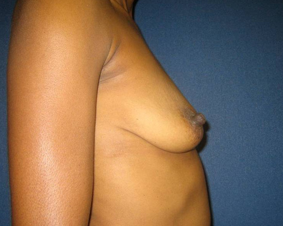 Breast Augmentation Gallery - Patient 4455138 - Image 5
