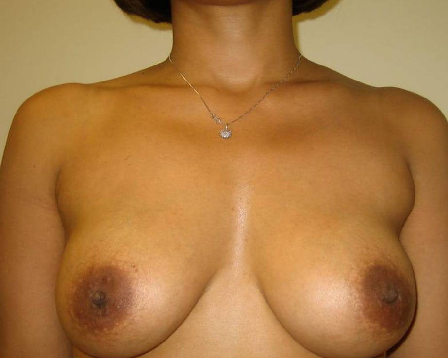 Breast Augmentation Gallery - Patient 4455138 - Image 2