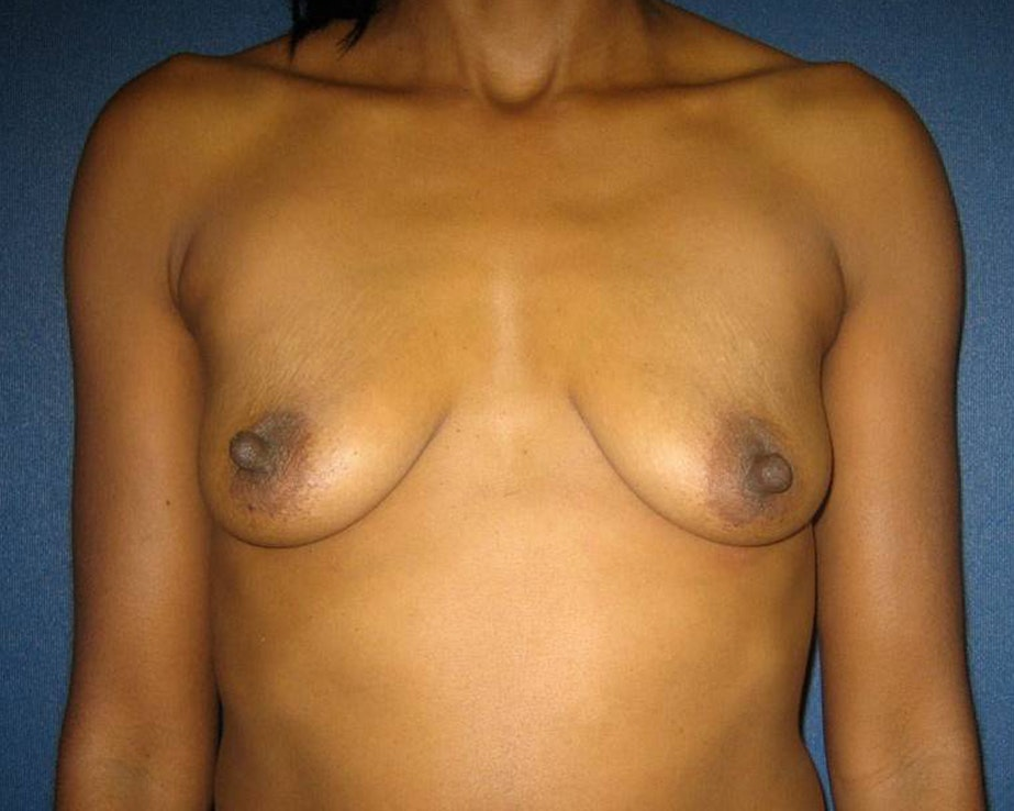 Breast Augmentation Gallery - Patient 4455138 - Image 1