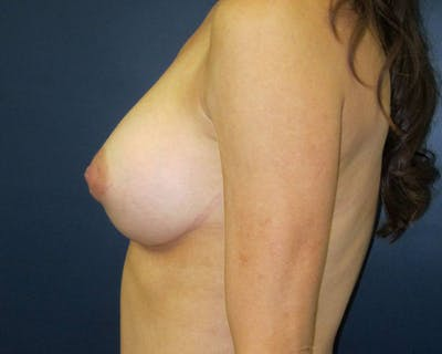 Breast Augmentation Gallery - Patient 4455182 - Image 4