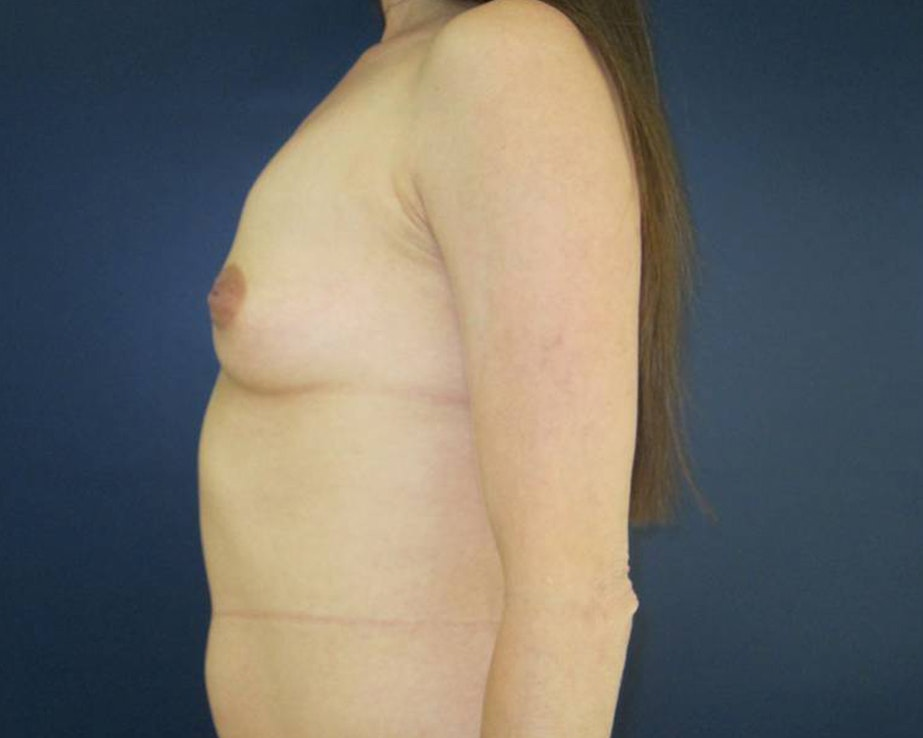 Breast Augmentation Gallery - Patient 4455182 - Image 3