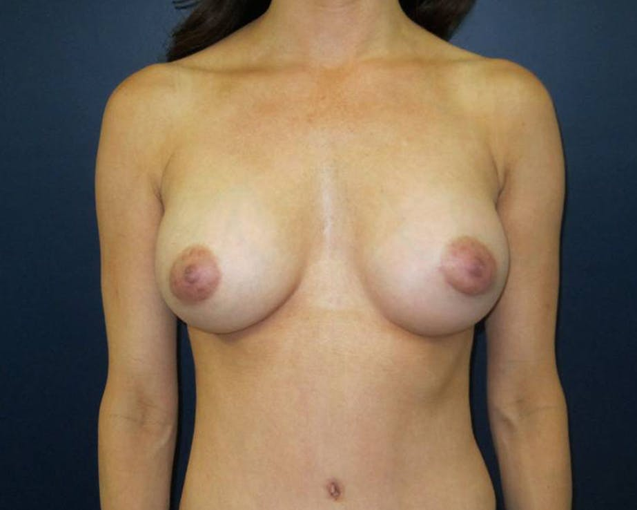 Breast Augmentation Gallery - Patient 4455182 - Image 2